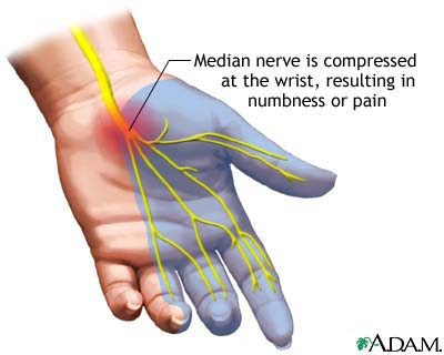 carpal tunnel syndrome - Sindrom Carpal Tunnel di Pergelangan Tangan