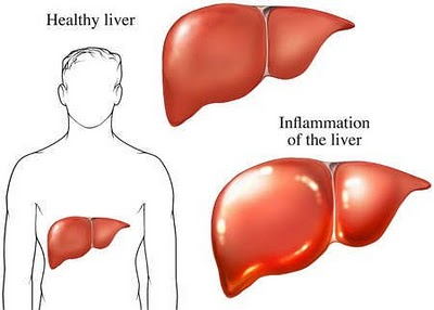 liver inflammation - Risiko Radang Hati (Hepatitis)