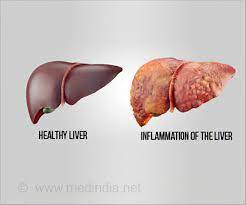 download 33 - Traditional Remedies For A Healthy Liver